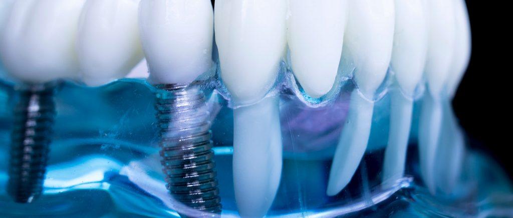 impianti dentali Brescia