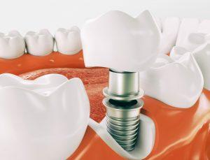 dentista implantologia brescia